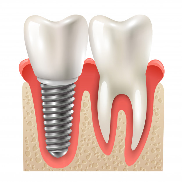 cost of dental implants in Columbus